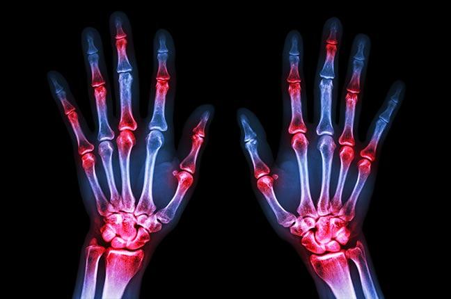 raio x da mão de uma pessoa com artrite