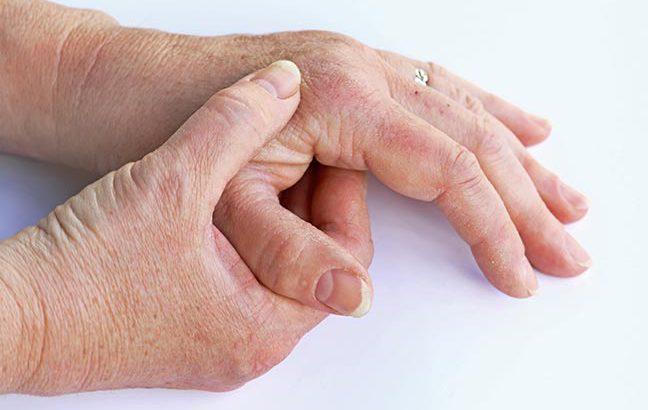 idosa com artrite